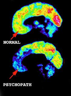 Psykopath brain