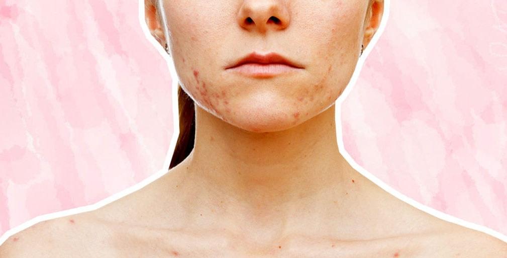 Probleme acnee