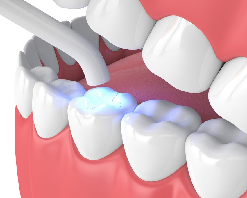 Composite Teeth Filling in Jamnagar