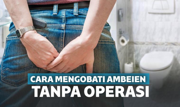 Tips Mengobati Benjolan Ambeien Dengan Mudah Yang Mujarab ...