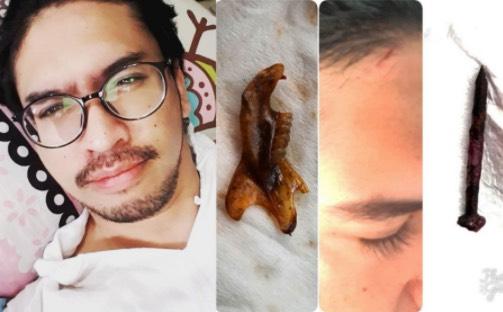 Paku Dan Rangka Gigi Dikeluarkan Dari Dalam Kepala, Nizen Ayob Kena Sihir Lagi