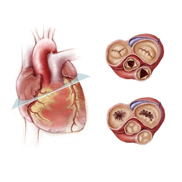 Open Heart Surgery cost in India