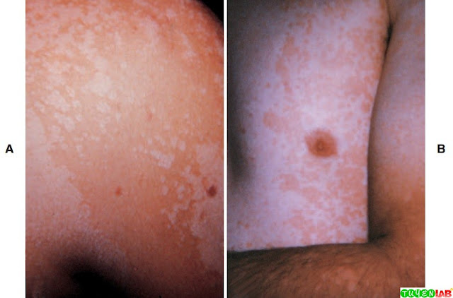 Hypopigmented (A) and hyperpigmented (B) rash of tinea versicolor.