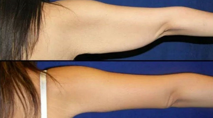 How To Get Rid Of Flabby Arms Forever