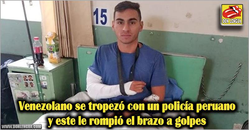 Venezolano se tropezó con un policía peruano y este le rompió el brazo a golpes