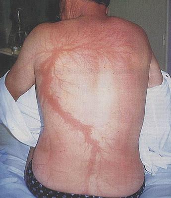 Posljedice udara groma na tijelo.
