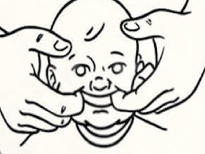 Gambar Infeksi Thrush : Penyebab, Cara Mengobati Dan Cara Mencegah Infeksi Thrush Pada Anak