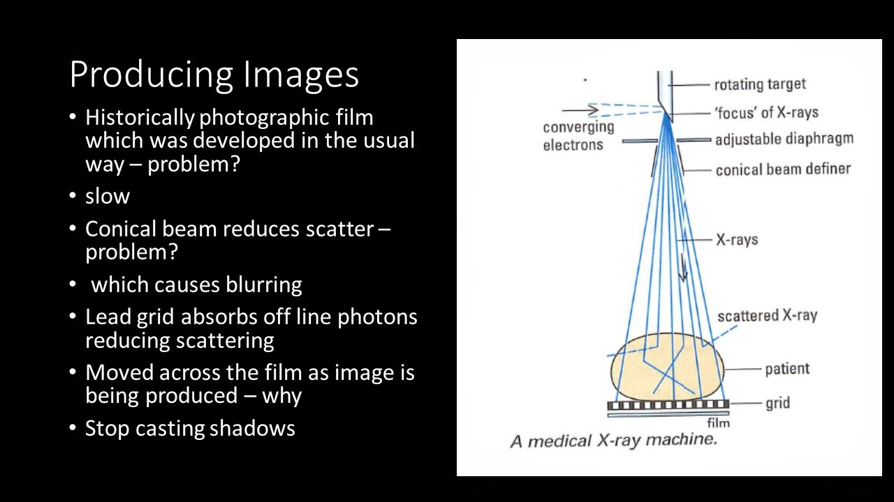 hight resolution of y13 x ray imaging