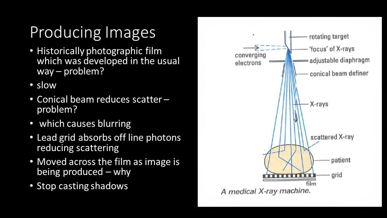 y13 x ray imaging [ 1280 x 720 Pixel ]