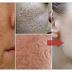 ماسك رائع جدا لإزالة البقع والحُفر من وجهك طبيعي ومُجرب ونتيجة سريعة