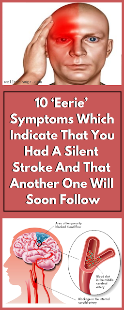 10 Early Symptoms Indicating For An Silent Stroke