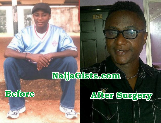 iyabo abade sex change surgery