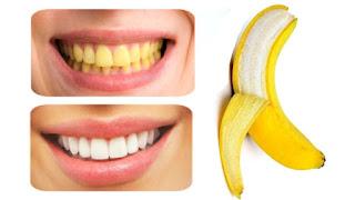 Teeth whitening techniques