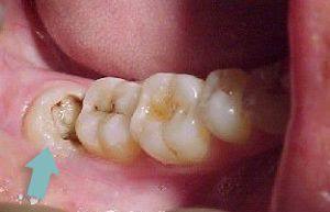 decay in wisdom tooth