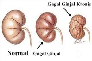 Komplikasi Penyakit Gagal Ginjal Kronis