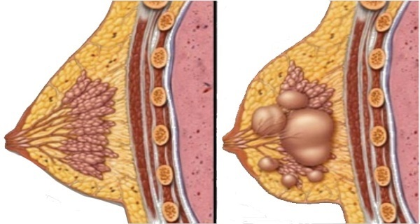 How To Get Rid Of Breast Cysts Using This Natural Remedy! GIRLS READ HERE!