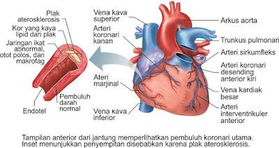 Pembuluh darah arteri koroner dan plak aterosklerosis