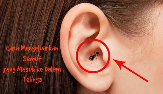 Cara Mengeluarkan Semut yang Masuk ke dalam Telinga