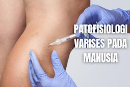 Patofisiologi Varises Pada Manusia