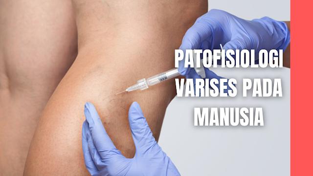 Patofisiologi Varises Pada Manusia Pada keadaan normal katup vena bekerja satu arah dalam mengalirkan darah vena naik keatas dan masuk kedalam. Pertama darah dikumpulkan dalam kapiler vena superfisialis kemudian dialirkan ke pembuluh vena yang lebih besar, akhirnya melewati katup vena ke vena profunda yang kemudian ke sirkulasi sentral menuju jantung dan paru.  Vena superfisial terletak suprafasial, sedangkan vena vena profunda terletak di dalam fasia dan otot. Vena perforata mengijinkan adanya aliran darah dari vena superfisial ke vena profunda.  Di dalam kompartemen otot, vena profunda akan mengalirkan darah naik keatas melawan gravitasi dibantu oleh adanya kontraksi otot yang menghasikan suatu mekanisme pompa otot.   Pompa ini akan meningkatkan tekanan dalam vena profunda sekitar 5 atm. Tekanan sebesar 5 atm tidak akan menimbulkan distensi pada vena profunda dan selain itu karena vena profunda terletak di dalam fasia yang mencegah distensi berlebihan.   Tekanan dalam vena superfisial normalnya sangat rendah, apabila mendapat paparan tekanan tinggi yang berlebihan akan menyebabkan distensi dan perubahan bentuk menjadi berkelok-kelok.  Peningkatan tekanan di dalam lumen paling sering disebabkan oleh terjadinya insufisiensi vena dengan adanya refluks yang melewati katup vena yang inkompeten baik terjadi pada vena profunda maupun pada vena superficial.  Peningkatan tekanan vena yang bersifat kronis juga dapat disebabkan oleh adanya obstruksi aliran darah vena. Penyebab obstruksi ini dapat oleh karena thrombosis intravaskular atau akibat adanya penekanan dari luar pembuluh darah.   Pada pasien dengan varises oleh karena obstruksi tidak boleh dilakukan ablasi pada varisesnya karena segera menghilang setelah penyebab obstruksi dihilangkan.  Kegagalan katup pada vena superfisal paling umum disebabkan oleh karena peningkatan tekanan di dalam pembuluh darah oleh adanya insufisiensi vena.   Penyebab lain yang mungkin dapat memicu kegagalan katup vena yaitu adanya trauma lan