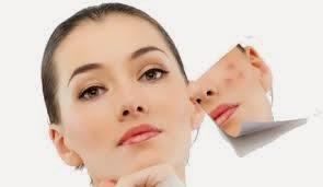 Cara menghilangkan jerawat kecil kecil di hidung dan dahi yang susah hilang