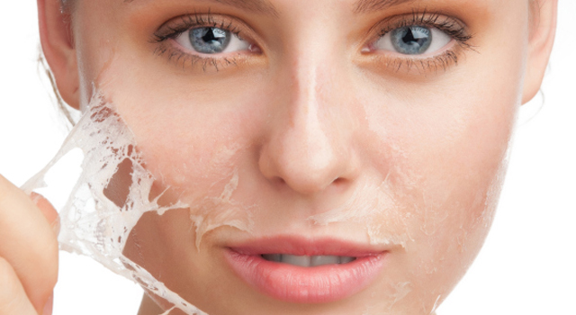Ter uma pele bonita é o sonho de muitas pessoas, por isso existem cremes faciais como o creme facial antienvelhecimento improve c 20, sérum, creme hidratante facial pele seca ou pele oleosa, entre muitos outros produtos. A intenção de usar esses produtos ou fazer procedimentos estéticos, é ter uma pele macia, pele hidratada, sem oleosidade e sem cravos e espinhas, para isso é importante ter cuidado com a pele. Pois a limpeza de pele é algo que tem que ser feito diariamente para atingir o resultado esperado. Mas é muito importante saber se você tem sensibilidade na pele, pois usar qualquer produto não é bom, o ideal é procurar um dermatologista que vai te indicar um produto ideal.