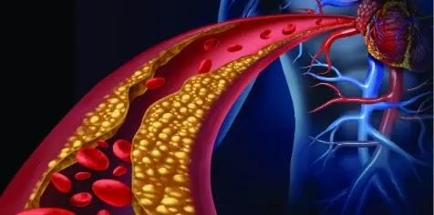Hereditary High Cholesterol