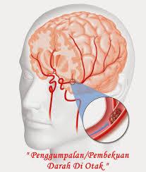 Obat Untuk Mengatasi Penggumpalan Darah Di Kepala