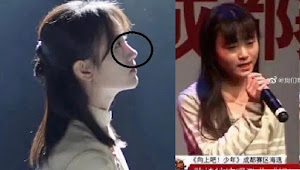 Her Nose is too Translucent, SNH48 former Ju Jingyi' Suspected Getting Plastic Surgery
