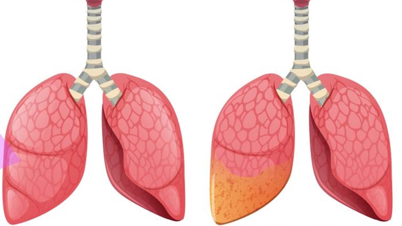 Mesothelioma Cells & Types