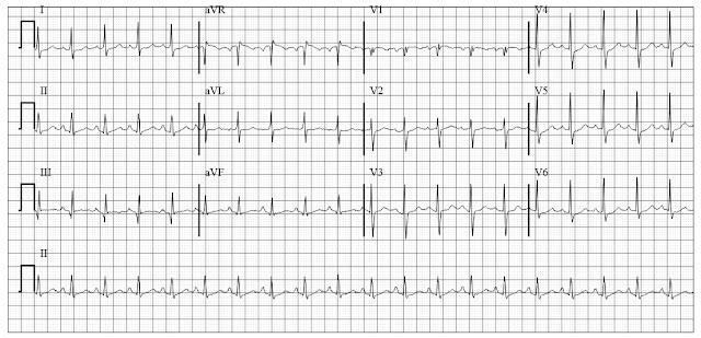 ECG of acute cor pulmonale Pulmonary embolism