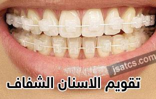 سعر تقويم الاسنان الشفاف