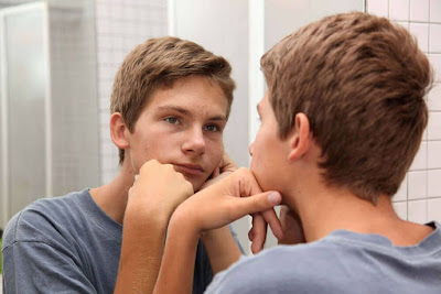 masalah jerawat pada remaja usia pubertas