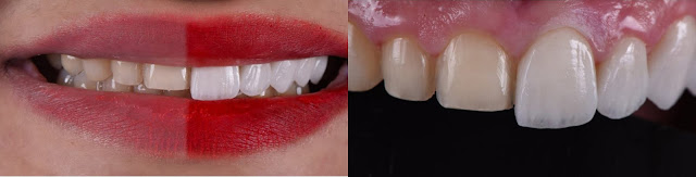 case of smile design by veneers by bharat katarmal