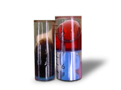 automat, skrzynia automatyczna, olej przekładniowy, wymiana oleju w skrzyni automatycznej, wymiana dynamiczna, olej do automatu, problem ze skrzynią automatyczną,  czy warto wymieniać olej w skrzyni automatycznej, atf fluid, atf change oil, oil change automatic transmission, oil change automatic