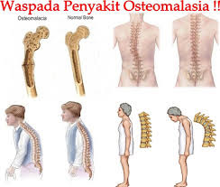 Cara Mengobati Osteomalasia dengan Alami dan Aman