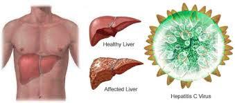 Cara alami mengobati hepatitis c