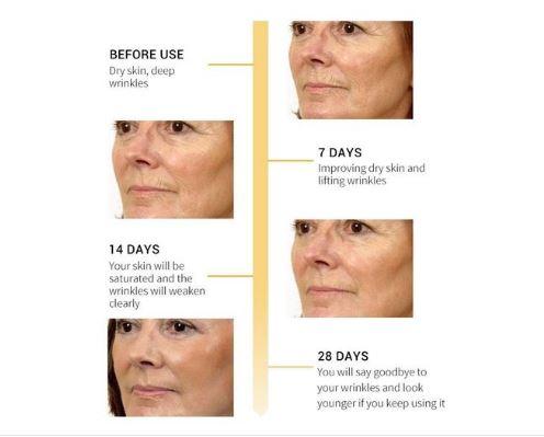 fungsi retinol untuk kulit, penjagaan kulit muka, apa itu retinol, the ordinary retinol