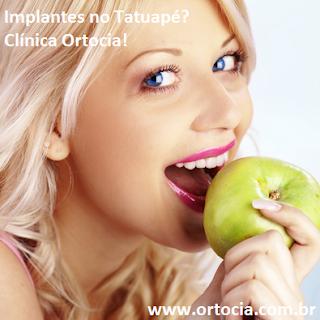 dentista tatuape implante
