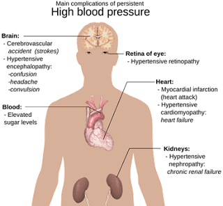 Causes Diabetes - 12 Early Symptoms of Diabetes.