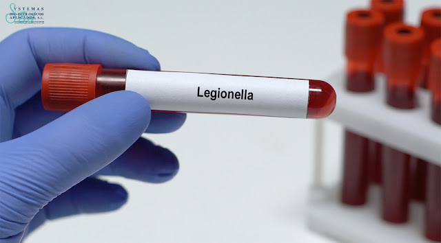 control legionella logroño