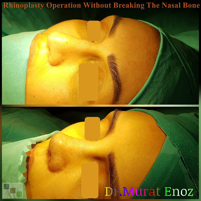 Nose job without bone broken,Rhinoplasty Without Breaking The Nasal Bone in Istanbul,