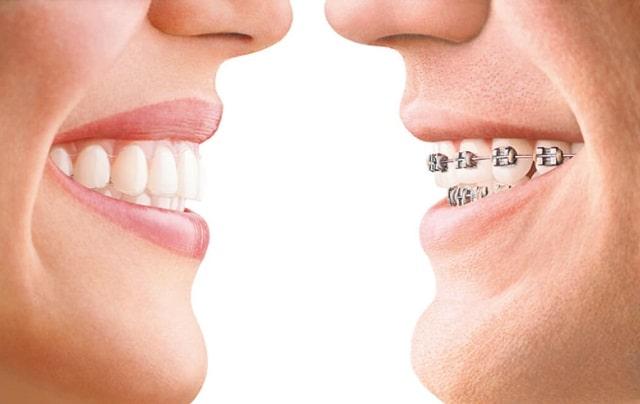 why choose invisalign vs braces teeth alignment straight smile