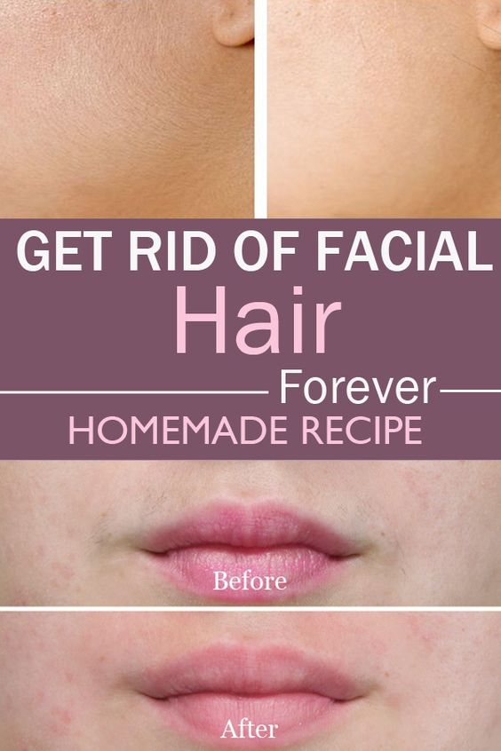 How To Get Rid Of Unwanted Facial Hair Naturally 105