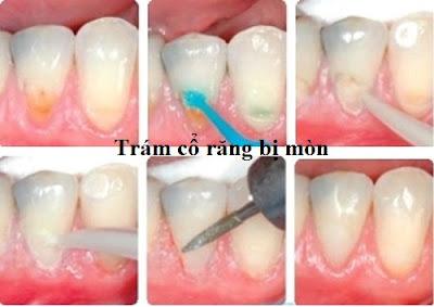 mòn chân răng có trám được không -3