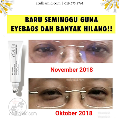 Testimoni Youth Eye Cream: Eye Bag Semakin Berkurangan