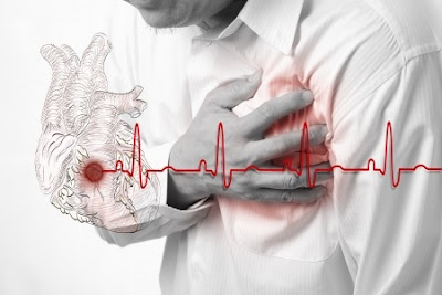 which occurs when the heart muscle does not get enough blood supplied to make the heart t Angina Pectoris Definition : What Is Angina Pectoris ?