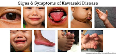 image result for kawasaki disease interesting facts