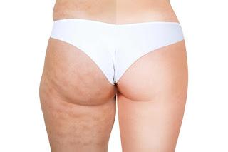 Evitemos la celulitis o piel de naranja-SitioFitness