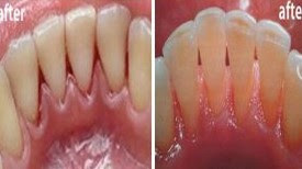 Rub These Two #Oils On Your #Gums And #Teeth [#Health #Remedies]